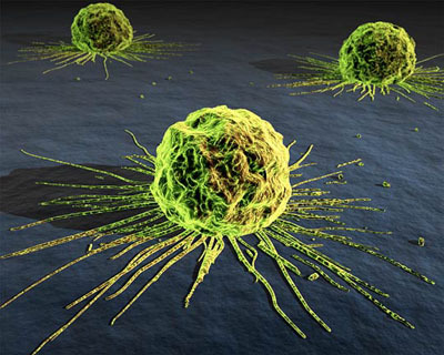 0600_cancer_cells