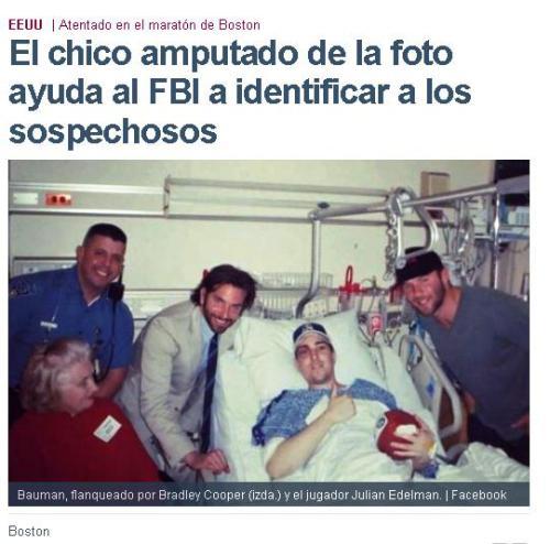 amputado-falso